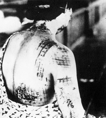 kimono pattern burned into her flesh