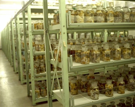 Hiroshima Nagasaki victim organs